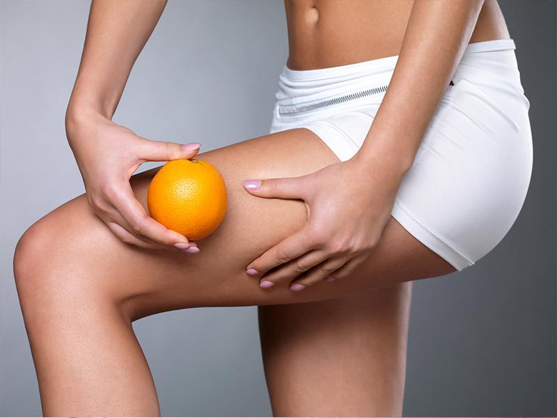 Combattere la cellulite con lo sport